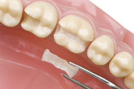 photo of dental inlays