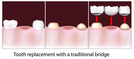 illustration of dental bridges