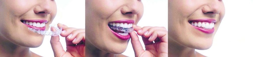 photo of woman inserting invisalign in her mouth